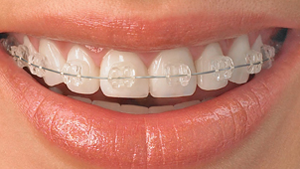 neumann & westover family dentistry - Ceramic-Braces