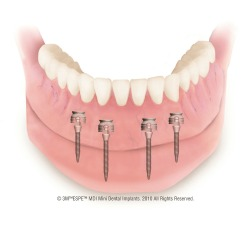 neumann & westover family dentistry - Mini implant