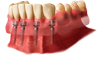 neumann & westover family dentistry locator implant denture