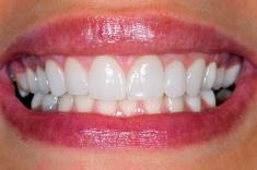 neumann & westover family dentistry - veneers